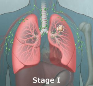 Stage 1 Lung Cancer