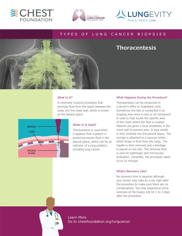 Navigating Lung Cancer - Lung Cancer