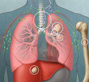 Extensive Stage Lung Cancer