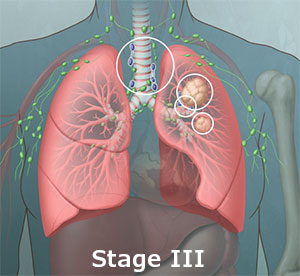 Stage 3 Lung Cancer